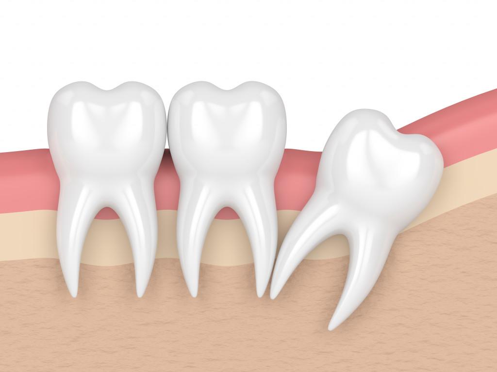 wisdom tooth concept